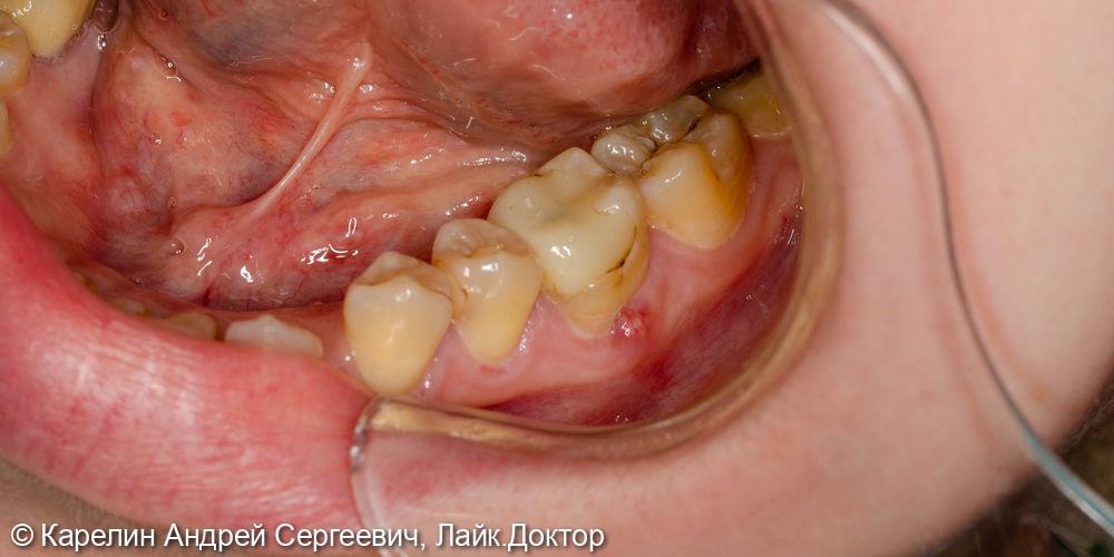 Атравматическое удаление зуба 3.6 под имплантацию - фото №1