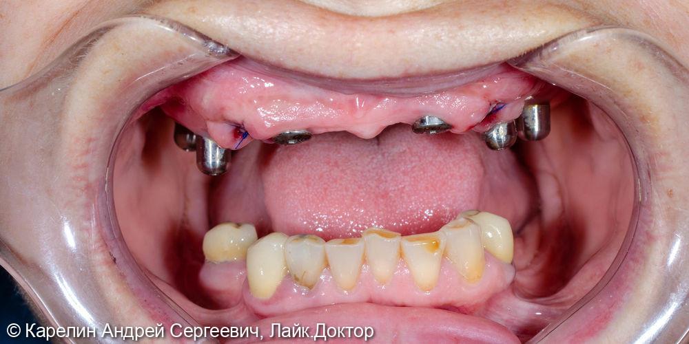 Тотальная реконструкция верхней челюсти на 6 имплантатах - фото №1