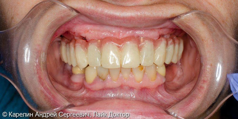 Тотальная реконструкция верхней челюсти на 6 имплантатах - фото №6