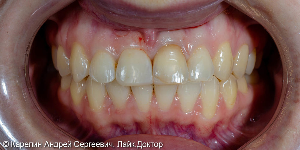 Решение проблемы дисколорита и асимметрии центральных резцов верхней челюсти - фото №1
