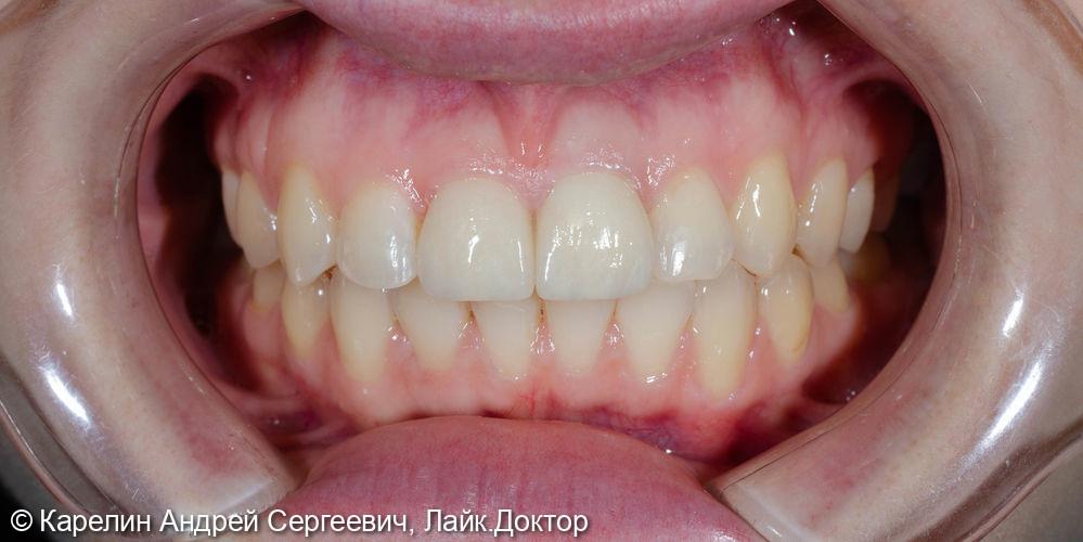 Решение проблемы дисколорита и асимметрии центральных резцов верхней челюсти - фото №10