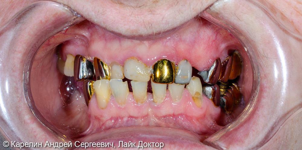 Реконструкция зубочелюстной системы металлокерамическими коронками и бюгельными протезами - фото №1