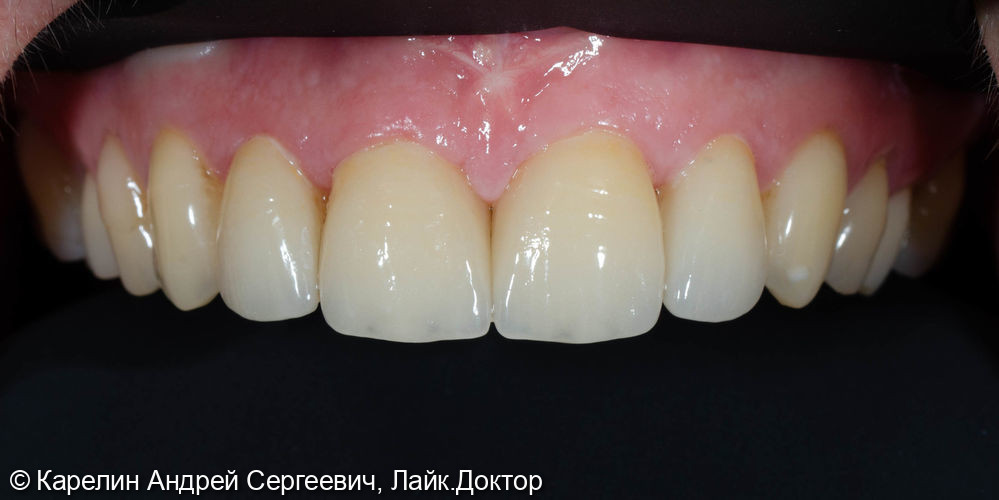 Закрытие диостемы винирами - фото №9
