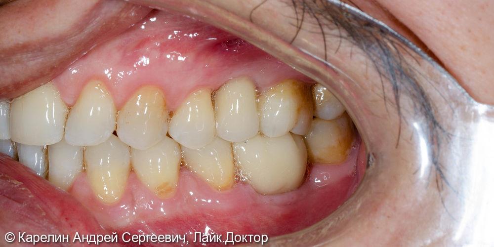 Имлантация 3 зубов - фото №13