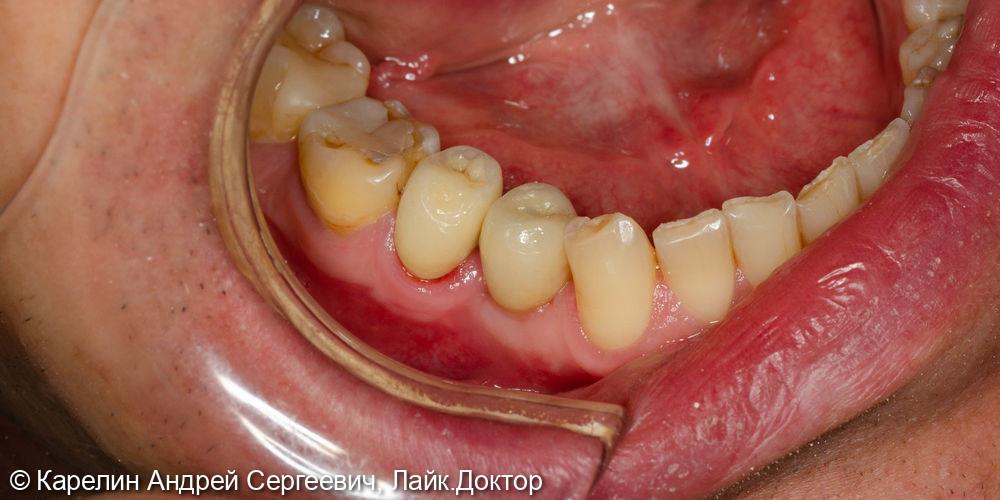 Имплантация в области зуба 4.4 с пластикой десны и протезированием.4.5 вкладка культевая и металлокерамическая коронка - фото №6