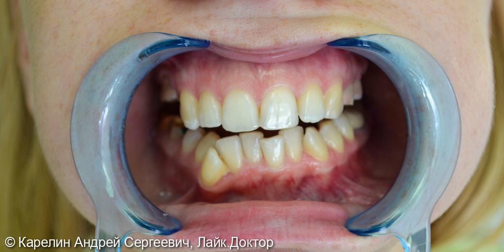 Полная реконструкция обеих челюстей с помощью брекет систем, имплантатов и коронок - фото №1