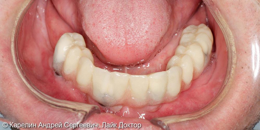 Установка 4 имплантатов на нижнюю челюсть под бюгельный протез с балочной фиксацией - фото №12