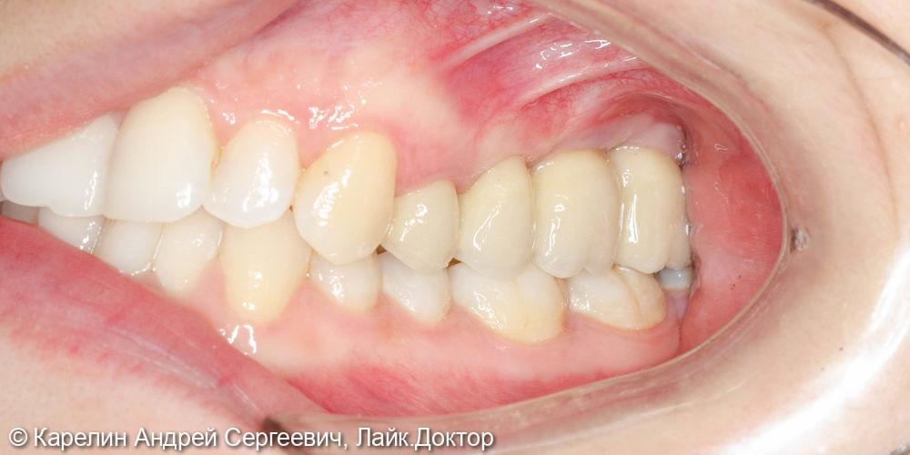 Имплантация в области 2.4,2.6,2.7 с синус лифтингом - фото №15