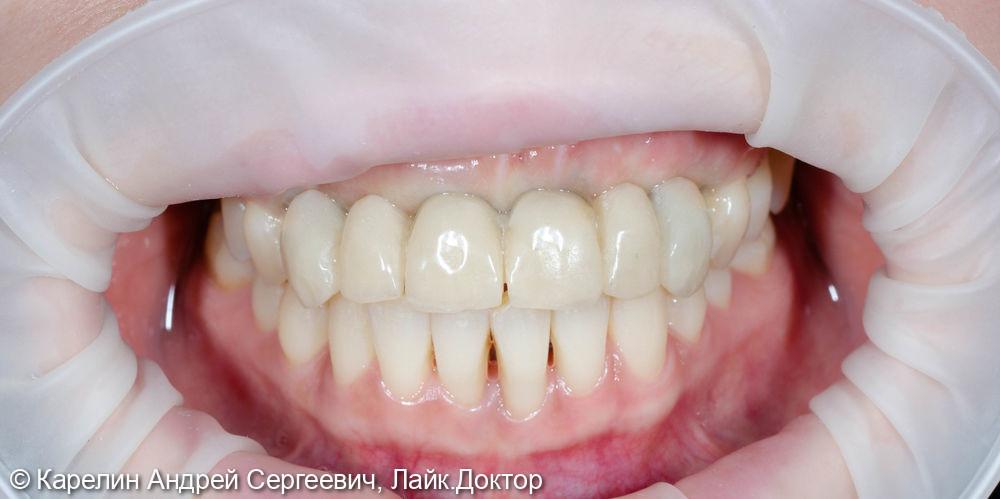 Имплантация во фронтальном отделе - фото №14