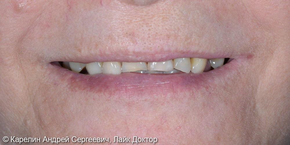 Тотальное протезирование верхней челюсти коронками на основе диоксида циркония - фото №1
