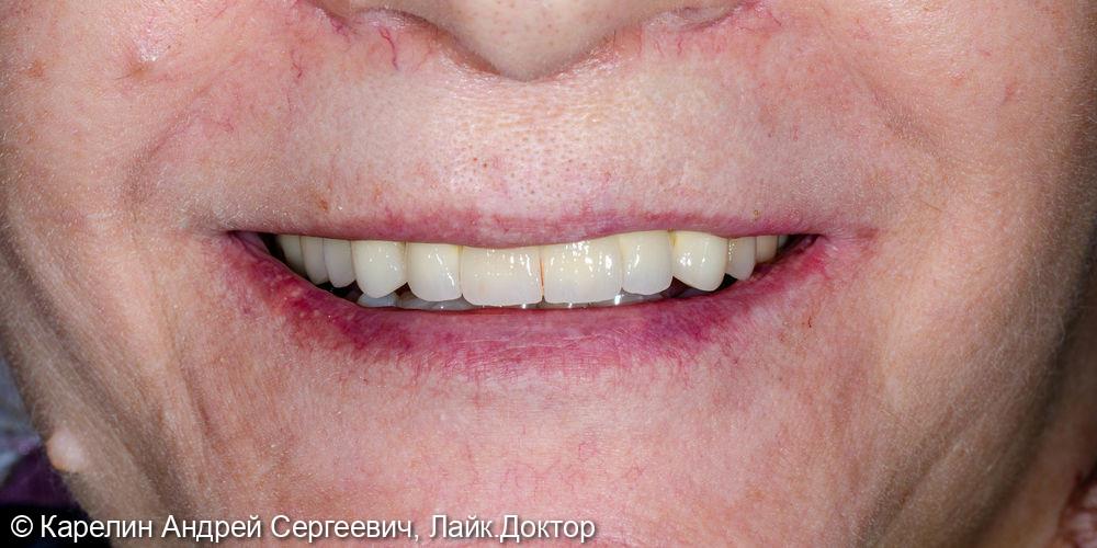 Тотальное протезирование верхней челюсти коронками на основе диоксида циркония - фото №11