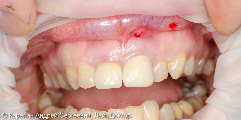 Лечение периодонтита зуба 2.1 и одномоментная с удалением имплантация зуба 1.1 - фото №1