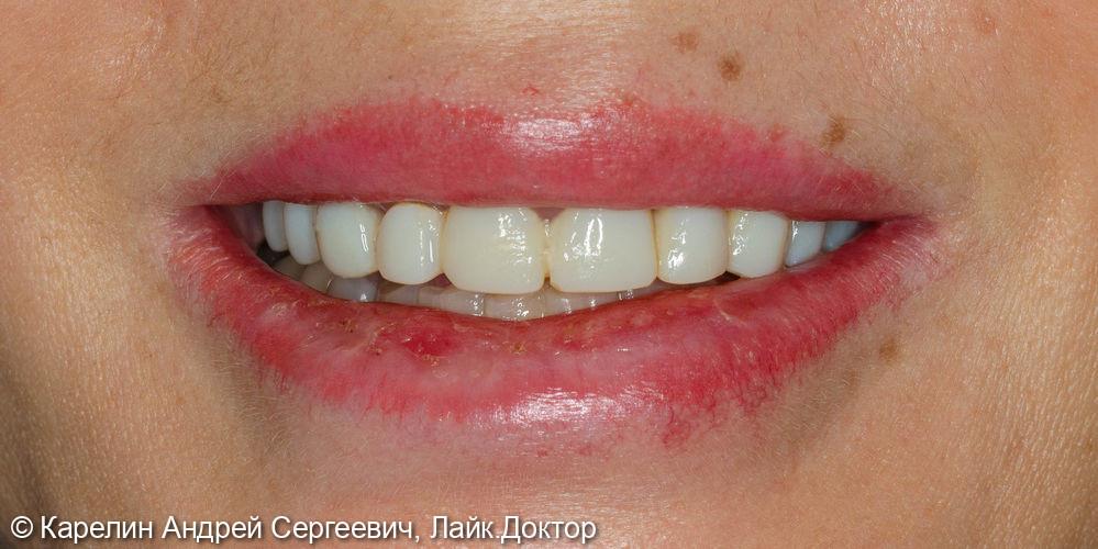Реконструкция верхней челюсти с помощью коронок на основе диоксида циркония - фото №1