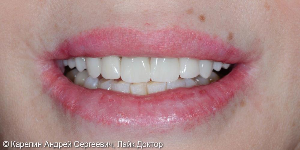 Реконструкция верхней челюсти с помощью коронок на основе диоксида циркония - фото №17