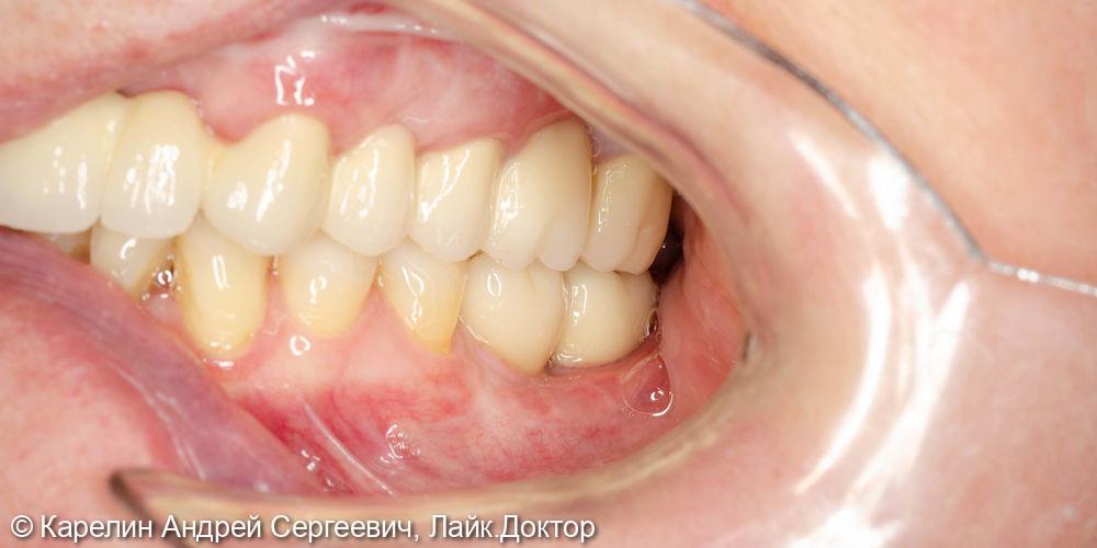 Имплантация в жевательном отделе нижней челюсти и операция по формированию преддверия - фото №16