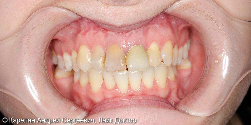 Эстетическая реабилитация фронтального участка верхней челюсти с помощью имплантатов - фото №1
