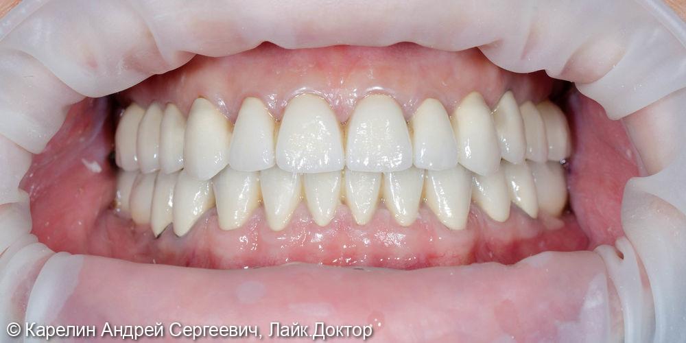 Тотальная реконструкция обеих челюстей с помощью металлокерамических коронок и имплантатов - фото №14