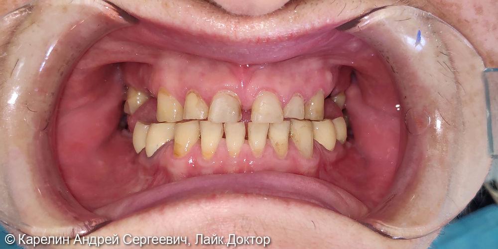 Тотальная реконструкция обеих челюстей с помощью металлокерамических коронок и имплантатов - фото №1