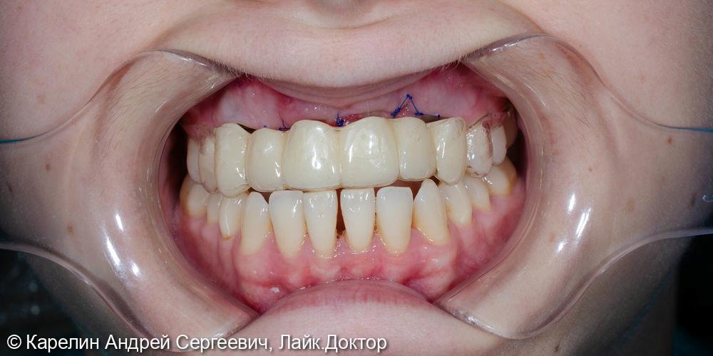 Одномоментная с удалением установка имплантатов во фронтальном участке верхней челюсти - фото №11