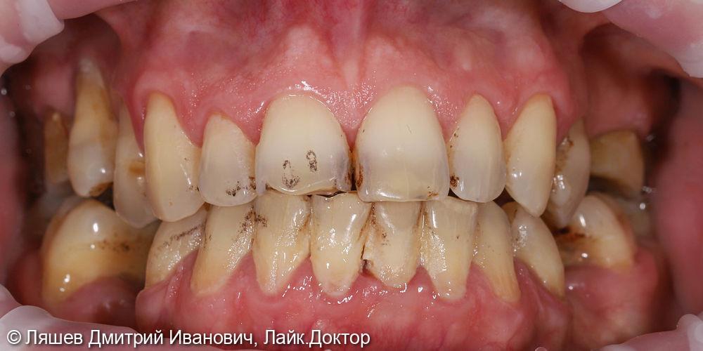 Гигиеническая чистка зубов - фото №1