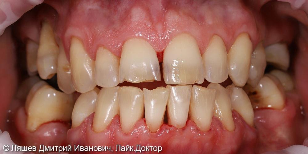 Гигиеническая чистка зубов - фото №4