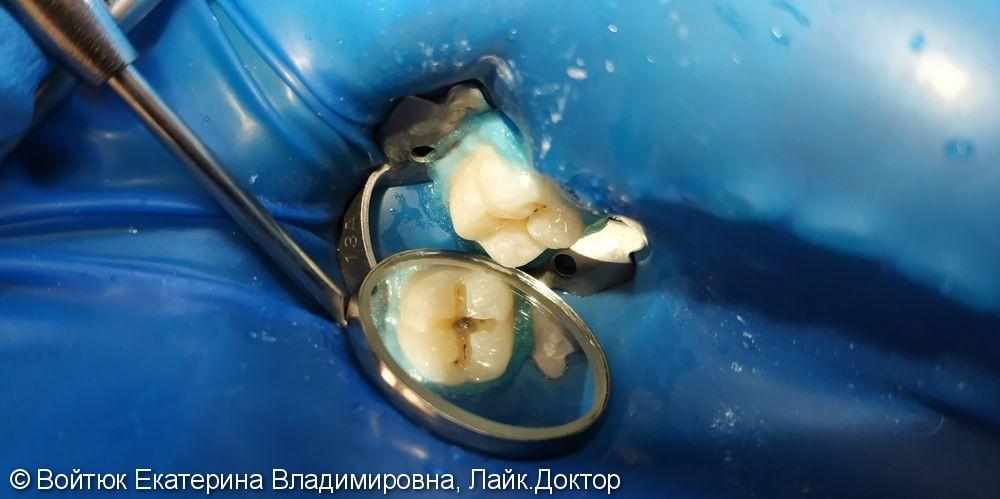 Лечение глубокого кариеса жевательного зуба 3.6 - фото №1