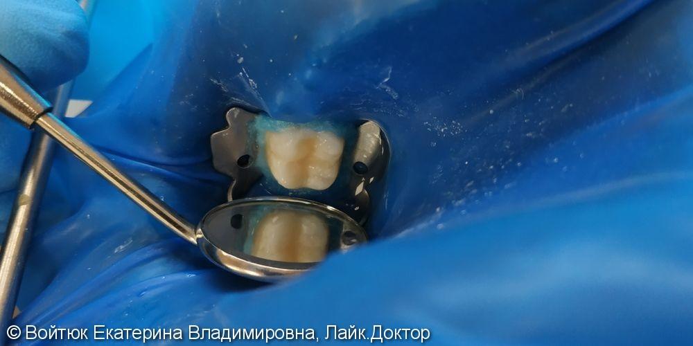Лечение глубокого кариеса жевательного зуба 3.6 - фото №3