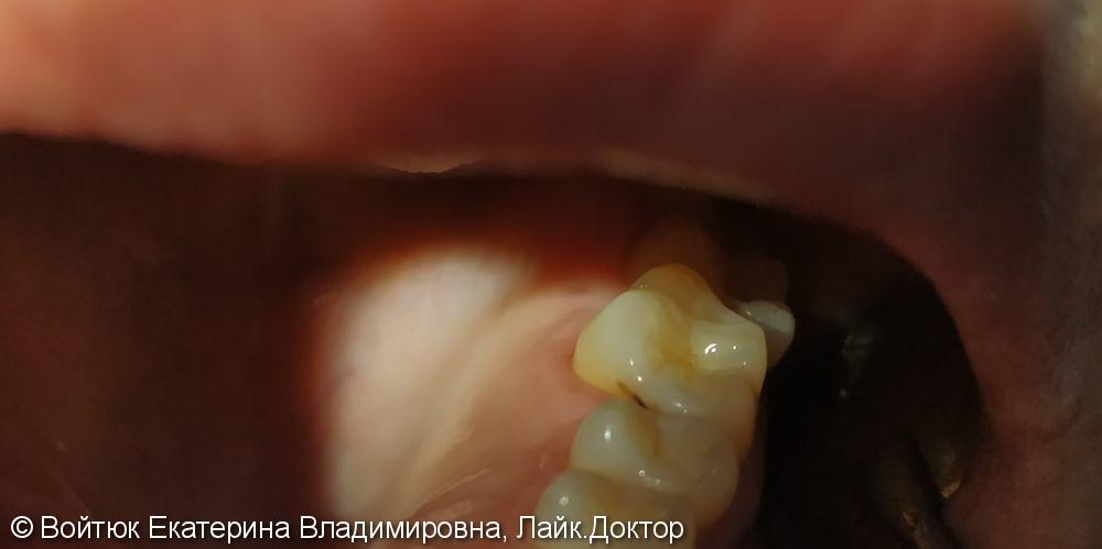 Лечение среднего кариеса зуба 3.6 - фото №1