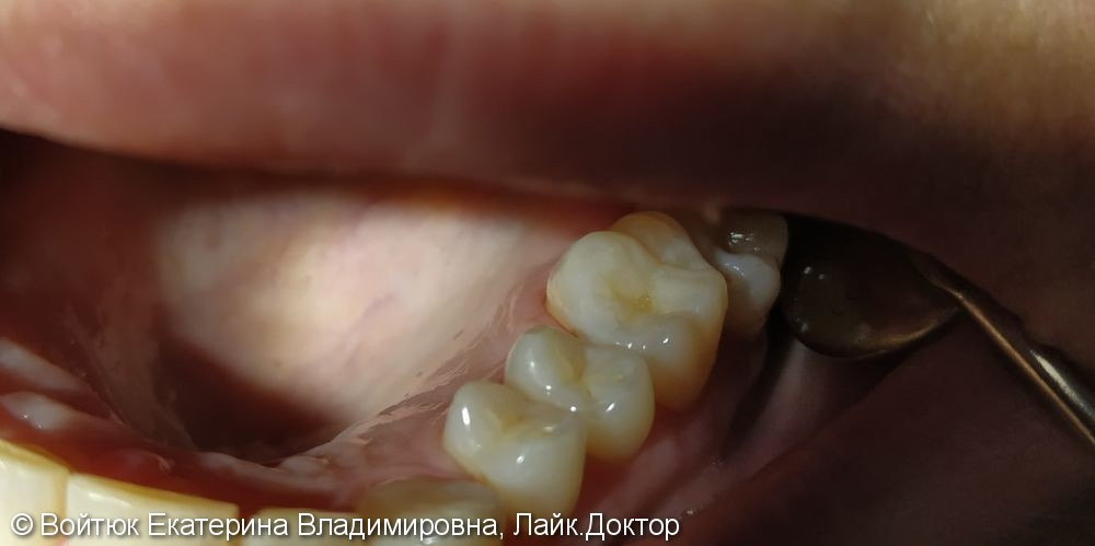 Лечение среднего кариеса зуба 3.6 - фото №2