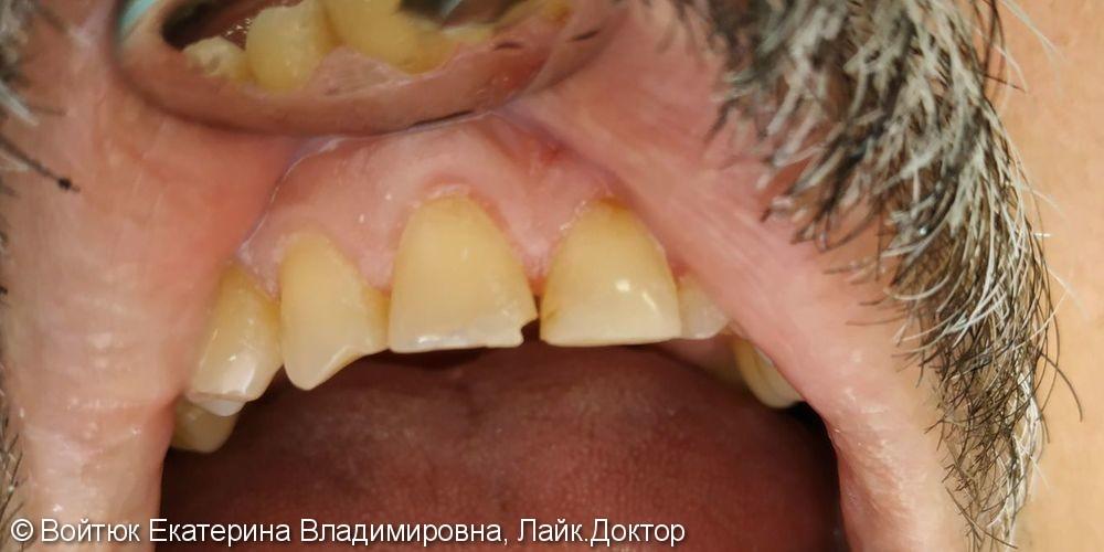 Реставрация переднего зуба 1.1 - фото №1