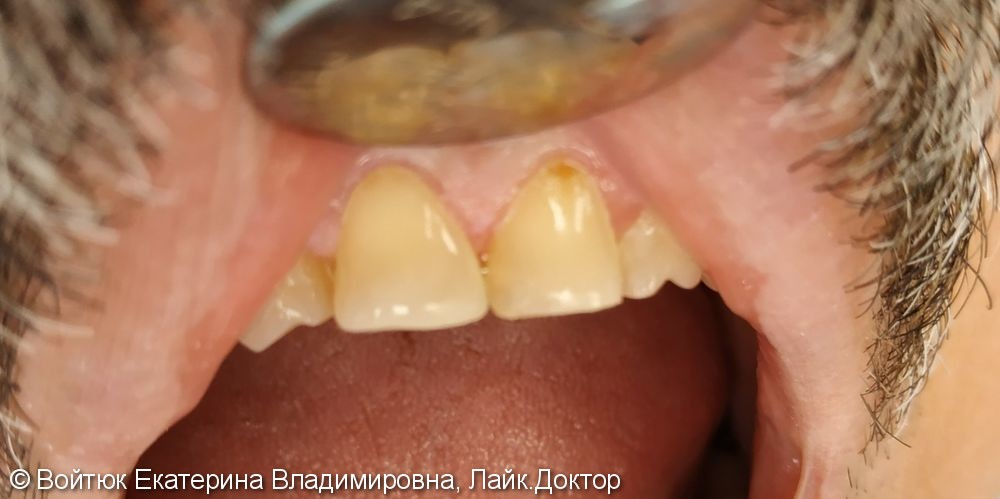 Реставрация переднего зуба 1.1 - фото №2