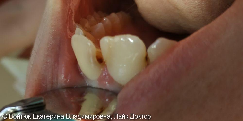 Лечение глубокого кариеса зуба 2,1 - фото №1