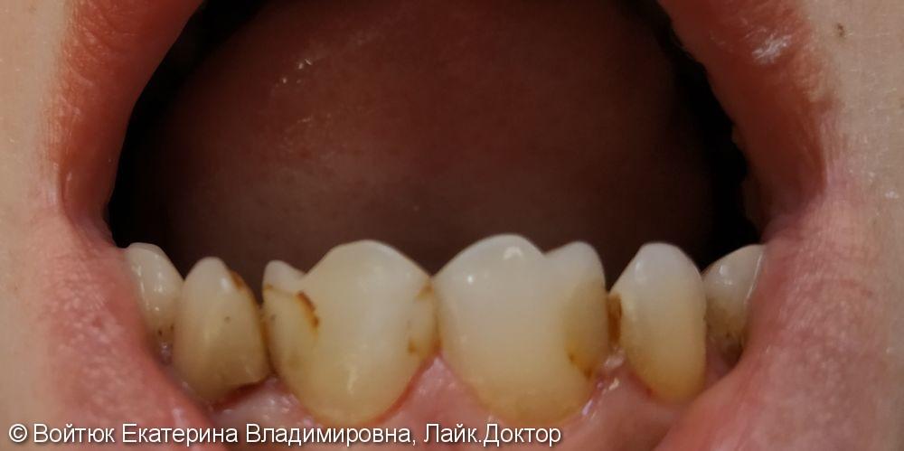 Реставрация передних зубов 1.2, 1.1, 2.1, 2.2 - фото №2