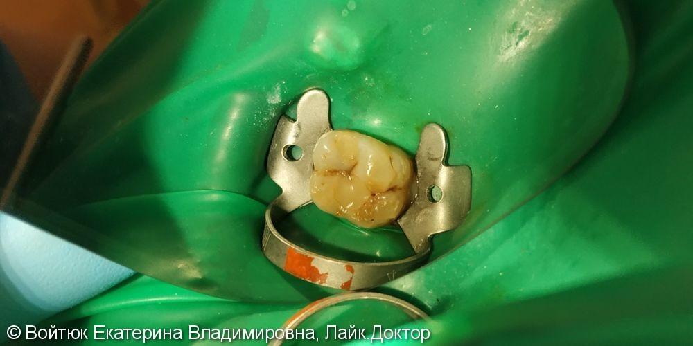 Лечение среднего кариеса зуба 2.6 - фото №1
