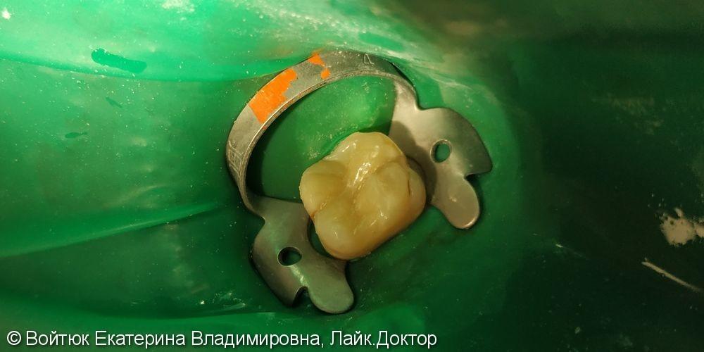Лечение среднего кариеса зуба 2.6 - фото №4