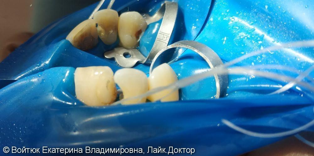 Лечение глубокого кариеса зубов 1.2, 1.3 - фото №1