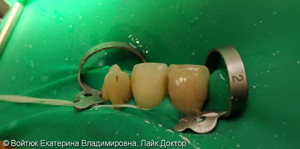 Лечение среднего кариеса 2.1, 2.2 зубов - фото №1