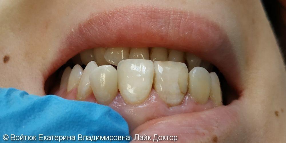 Лечение среднего кариеса 2.1, 2.2 зубов - фото №4