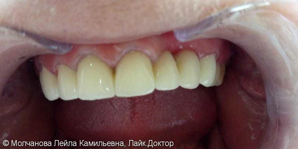 Тотальное протезирование верхней челюсти 8 металлокерамическими коронками - фото №3