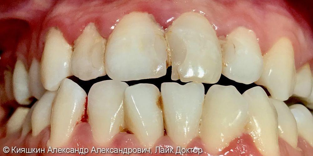 Реставрация зуба 21, созданы анатомические контакты между фронтальными зубами верхней челюсти - фото №1