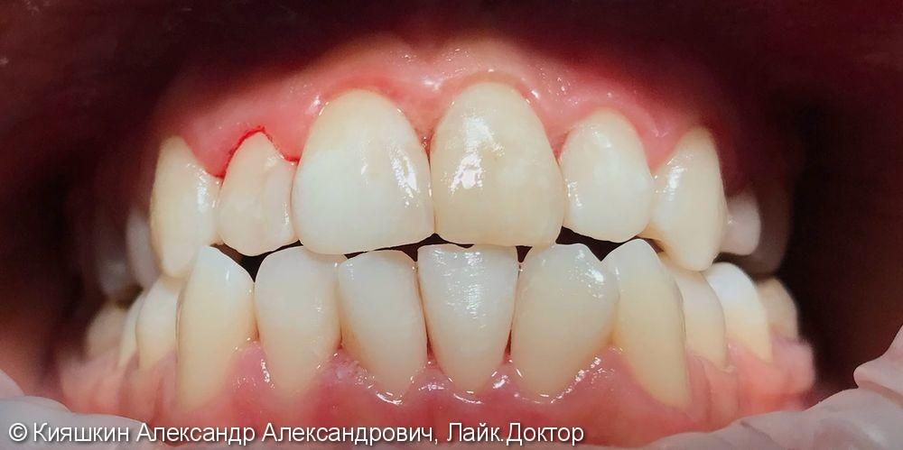 Реставрация зуба 21, созданы анатомические контакты между фронтальными зубами верхней челюсти - фото №2