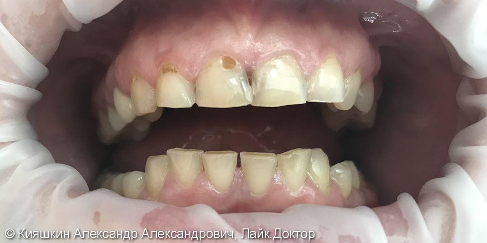 Контактный кариес 11 и 21 зубов, клиновидный дефект 12 и 11 зубов - фото №1
