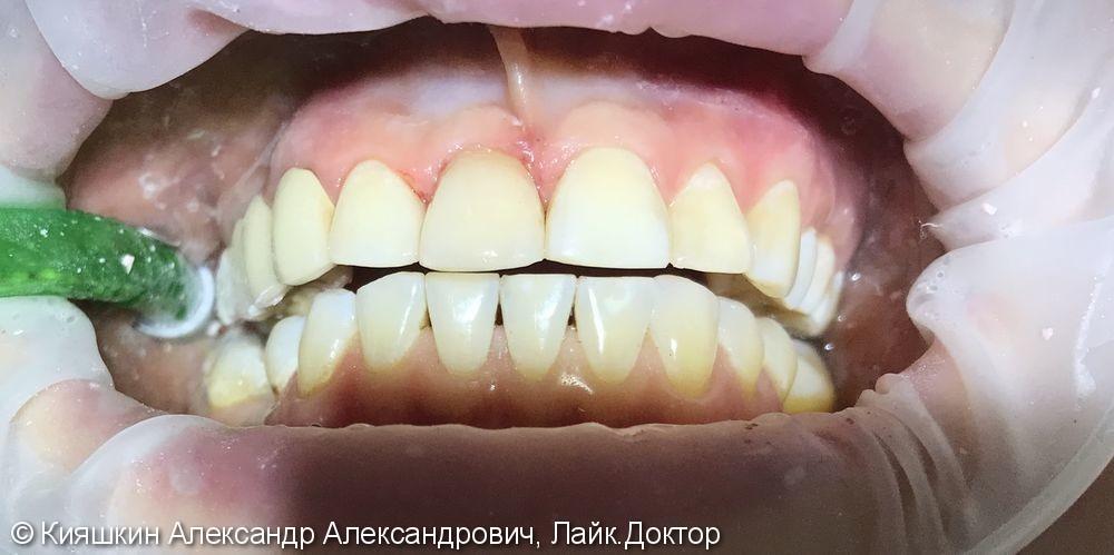 Вторичный кариес 12, 11, 22 и 23 зубов, контактный кариес 21 зуба - фото №2