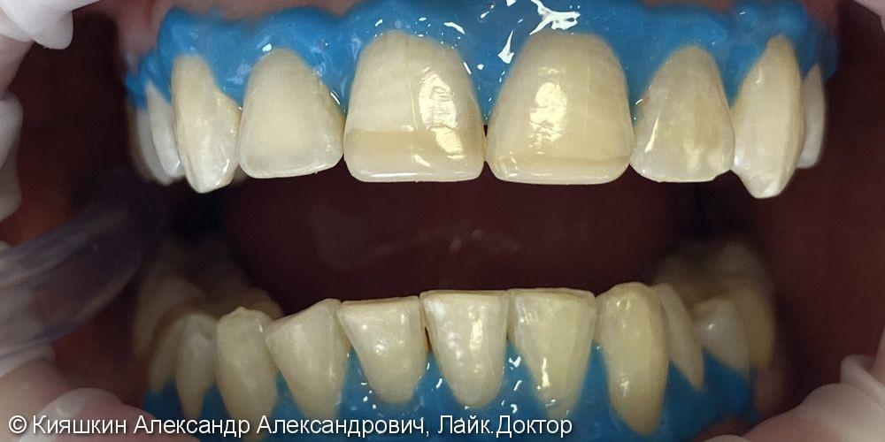 Отбеливание зубов Beyond Polus - фото №1