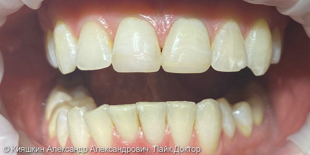 Отбеливание зубов Beyond Polus - фото №2
