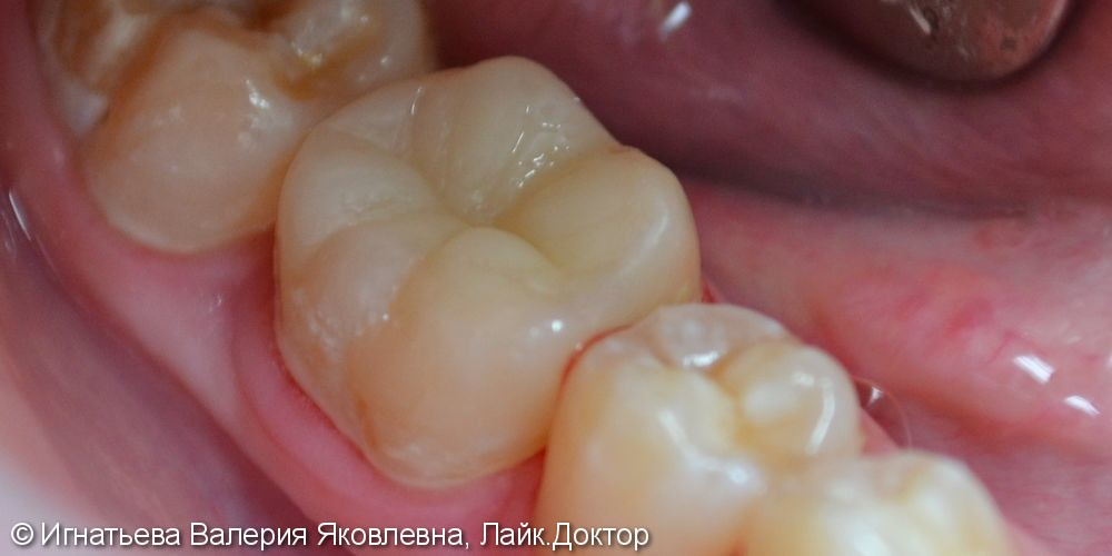Реставрация зуба - фото №2