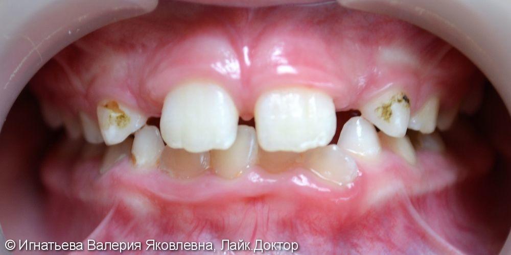 Лечение кариеса молочных зубов материалом Filtek Z250 - фото №1