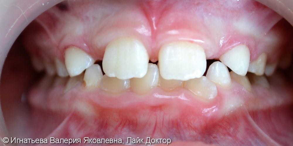 Лечение кариеса молочных зубов материалом Filtek Z250 - фото №2