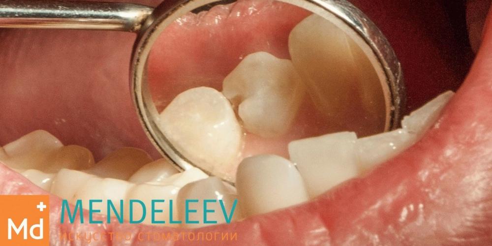 Лечение кариеса зуба 4.4 - фото №1