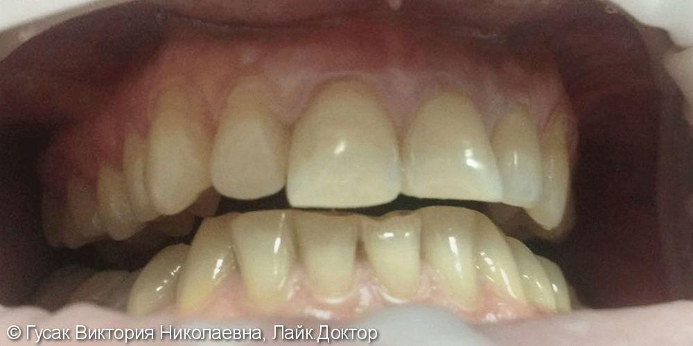 Устранение косметического дефекта и патологической стираемости зубов - фото №1
